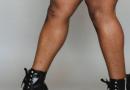 Stop a varices y arañas vasculares: piernas bellas y saludables